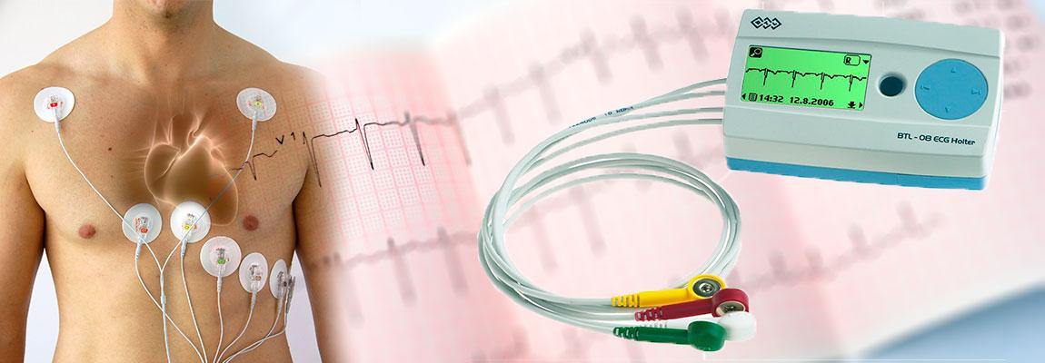 Holter (Monitorizare EKG 24h)