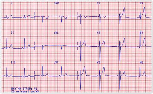 Electrocardiograma -EKG